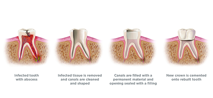 RDI Root Canal Treatment Banner